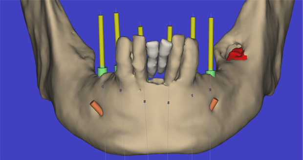 Cirugía Virtual sobre Modelos 3D