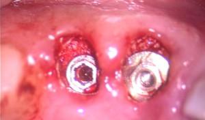 Implantes 24 horas colocados con microrelleno