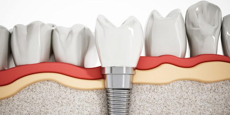 duracion implante dental