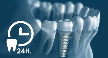 Implantes dentales en 24 horas