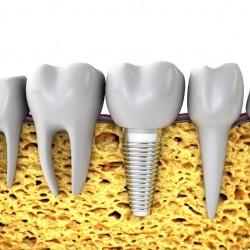 Pioneros en impantes dentales - Clinica Sicilia