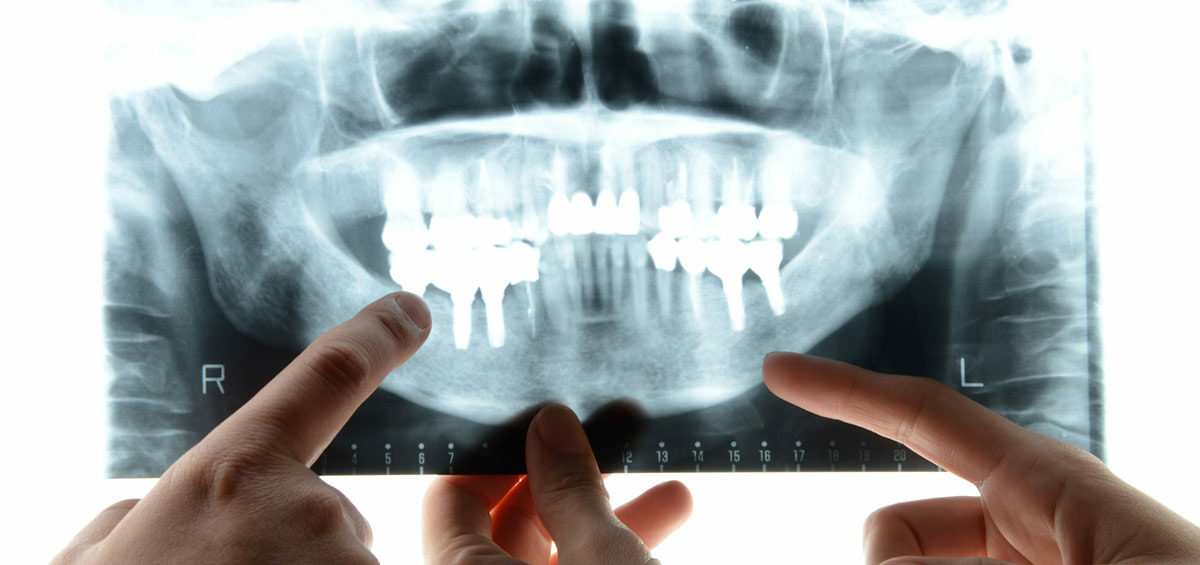 informacion-implantes-dentales