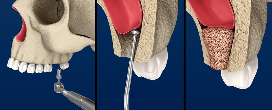 procedimiento-elevacion-seno-maxilar