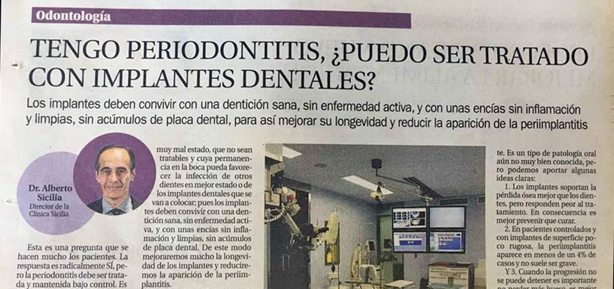 sicilia-periodontitis-implantes