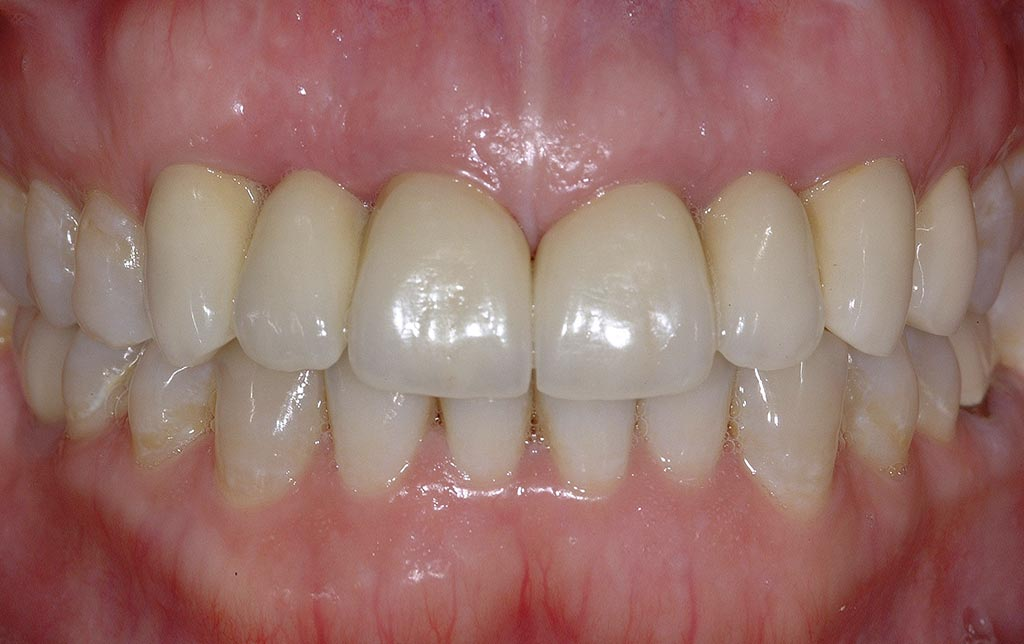 Sonrisa post implantes