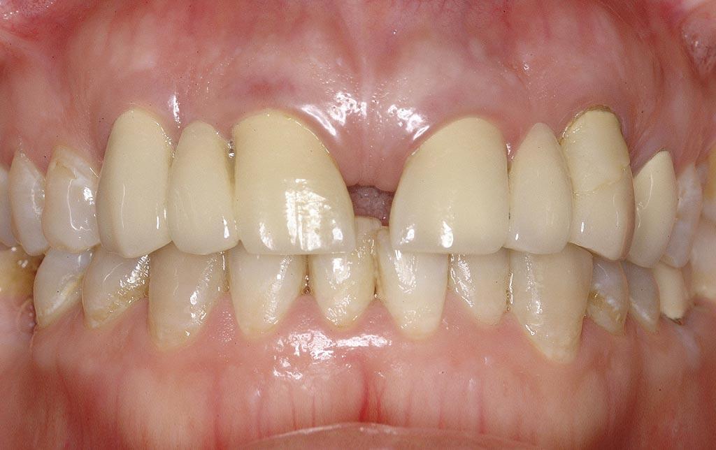 Sonrisa pre implantes