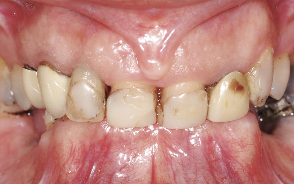 Sonrisa pre intra oral