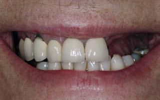 Sonrisa pre implante