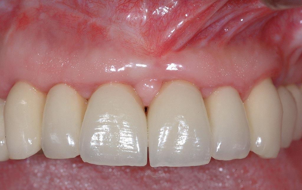 Sonrisa después implantes