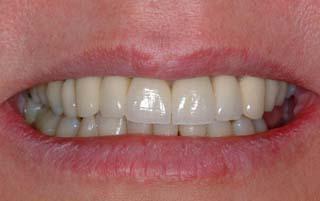 Sonrisas después implante