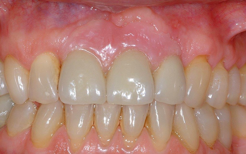 implante después