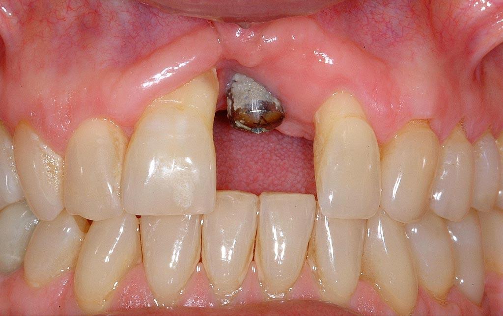 implante antes