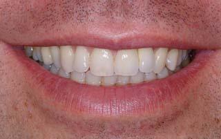 Sonrisa dientes después