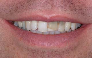 Sonrisa dientes antes